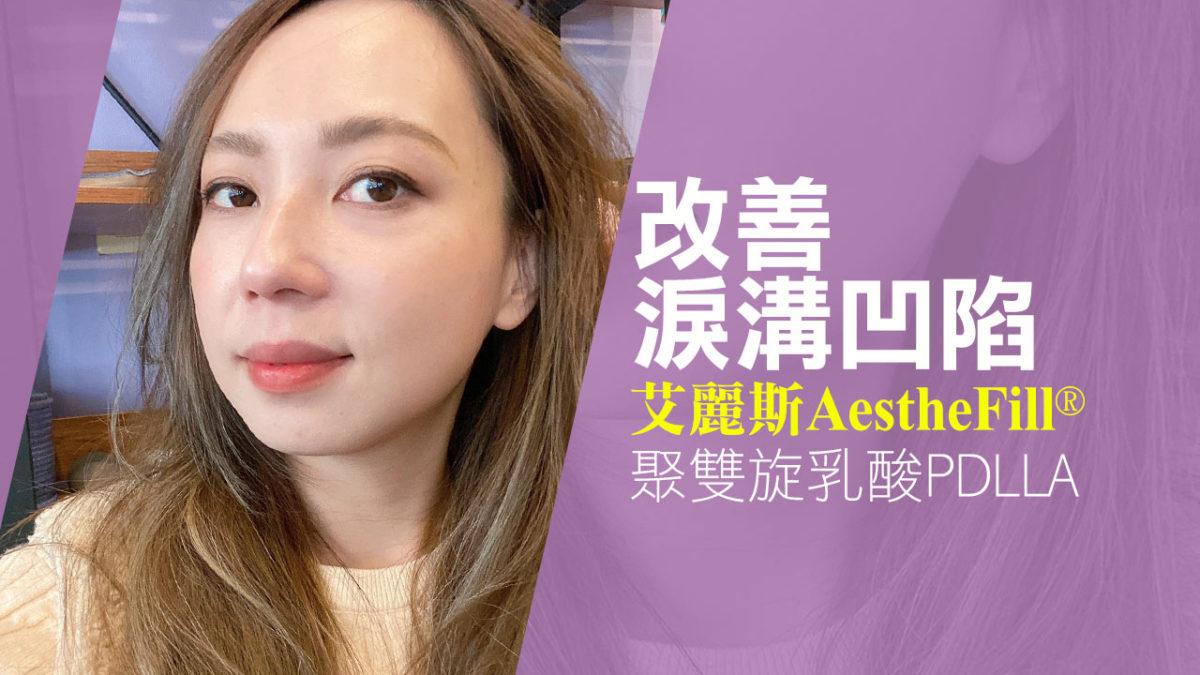 Aesthefill艾麗斯精靈針。改善淚溝凹陷